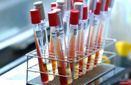 Cubanos podrán conocer resultado del PCR mediante SMS o correo electrónico