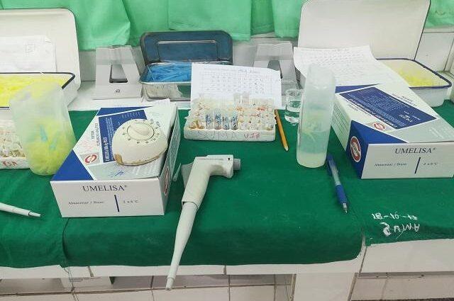Umelisa SARS-COV-2 antígeno, un sistema de diagnóstico 100 % cubano
